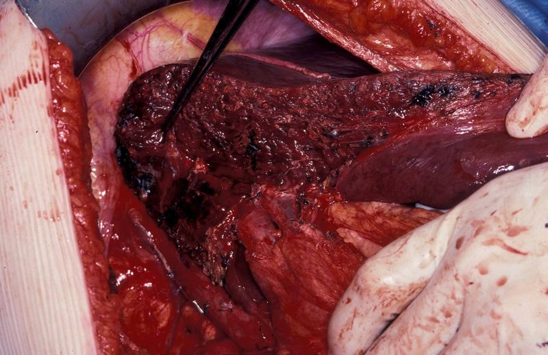 stones in gallbladder treatment plant